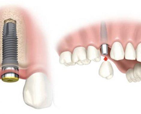Implant-Pic